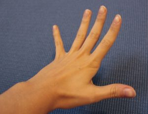 extension of the hand