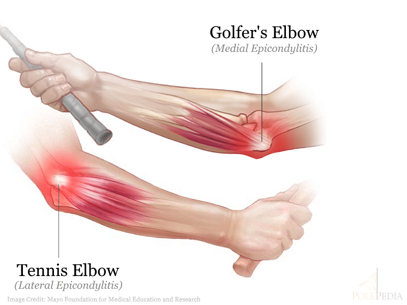 Image illustrating tennis elbow vs golfer's elbow
